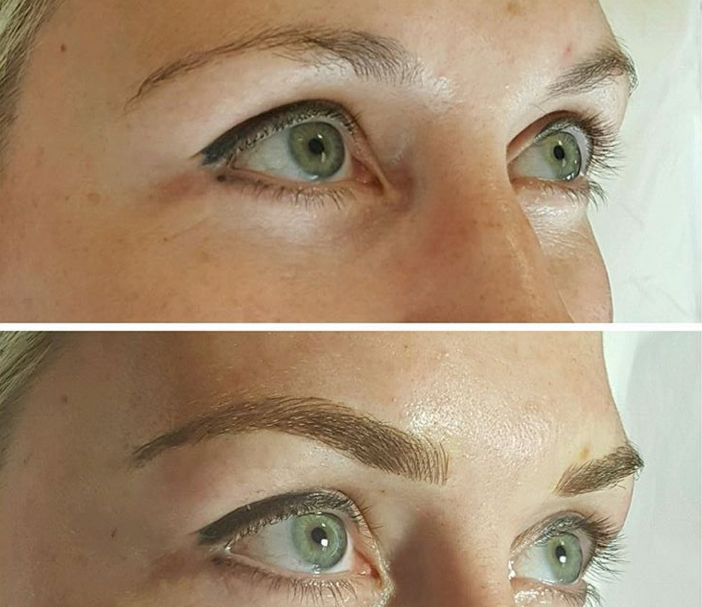 The difference microblading can do for the brows.